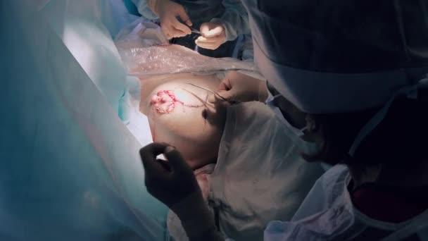 Chirurg die Brust nähen, die Chirurgie der Reimplantation abzuschließen