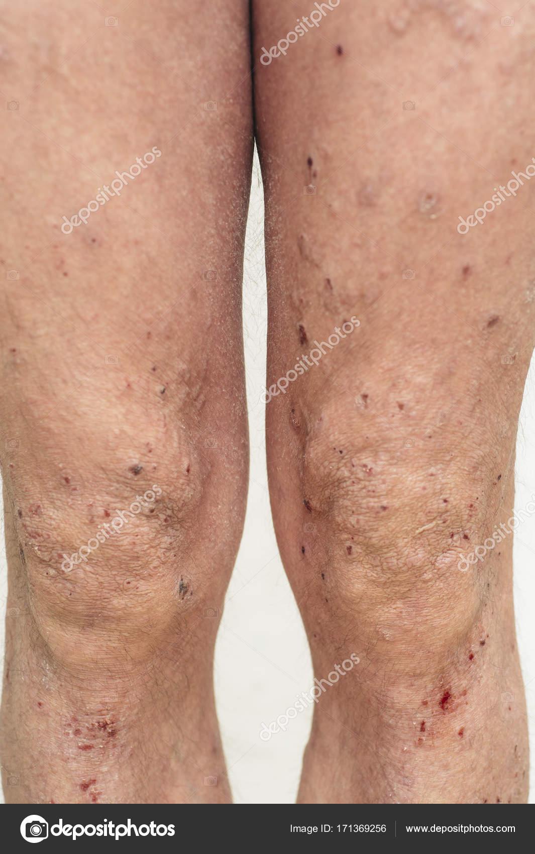 hombre que tiene problemas de piel seca y comezón foto de stock