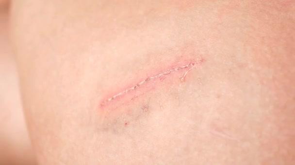 Čištění léze nebo rány na kůži s alkoholem za dezinfikujeme