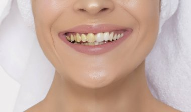 Teeth whitening. Teeth before and after cleansing. Wide smile of a young woman after cleaning the caries at the dentist.