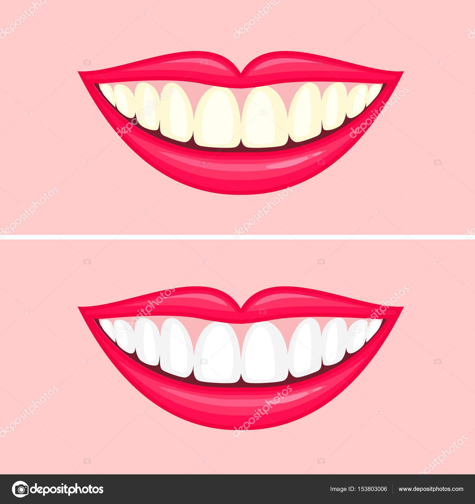 Tratamento Clareador De Dentes Branquear Os Dentes Antes E Depois