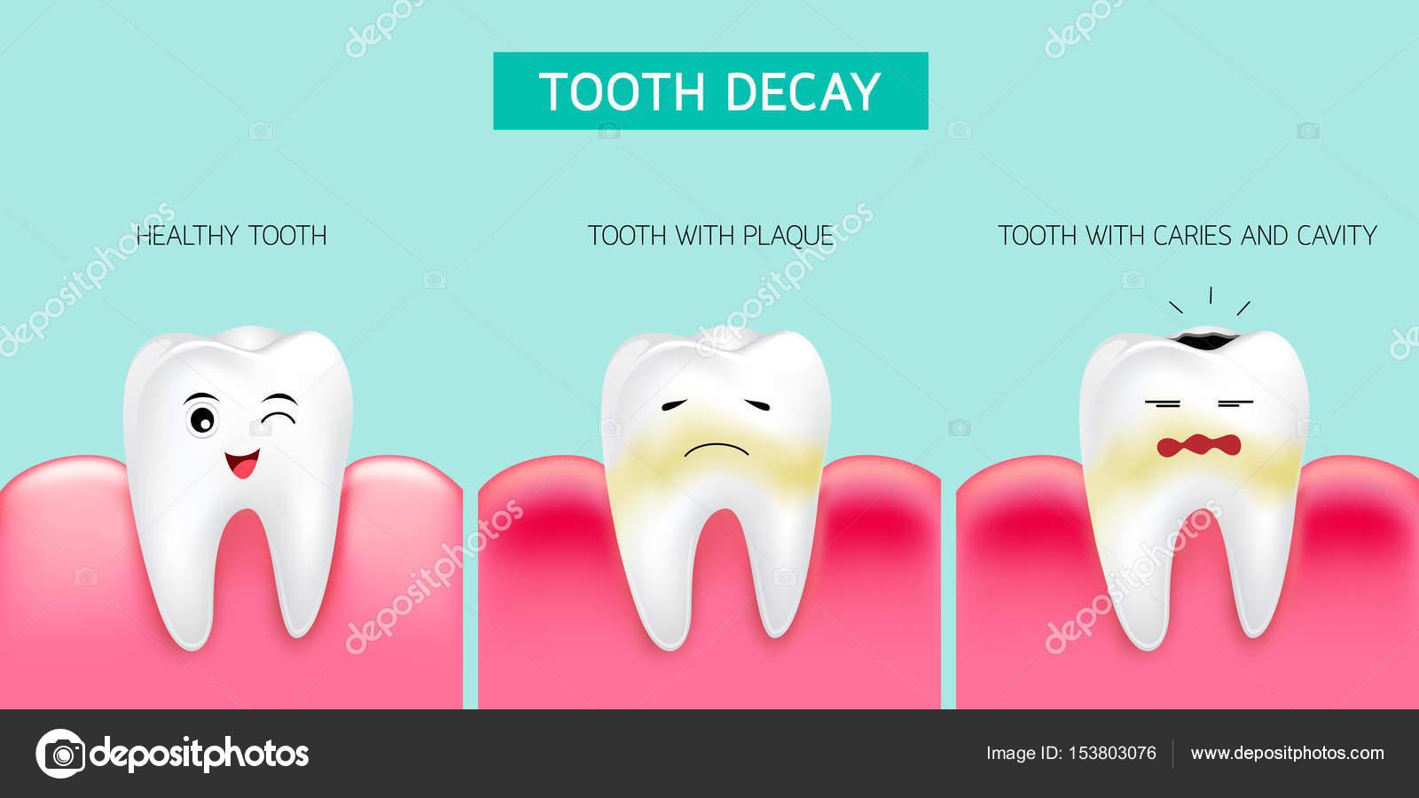 Paso de formación de caries los dientes. Diente sano, formando la ...