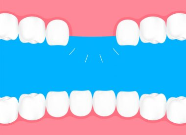 Human losing teeth in mouth. Info-graphic, dental care concept. Illustration isolated on blue background.