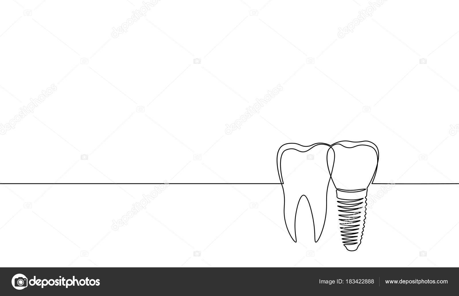 Sola línea continua arte anatómico del diente humano silueta ...