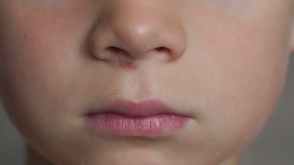 Großaufnahme des Gesichts eines kleinen Jungen mit einer zerkratzten Nase. 4k.