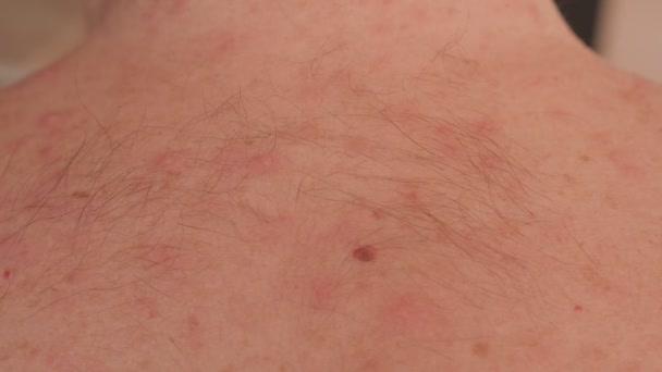 Detailní záběr na neštovice na zádech dospělého muže.