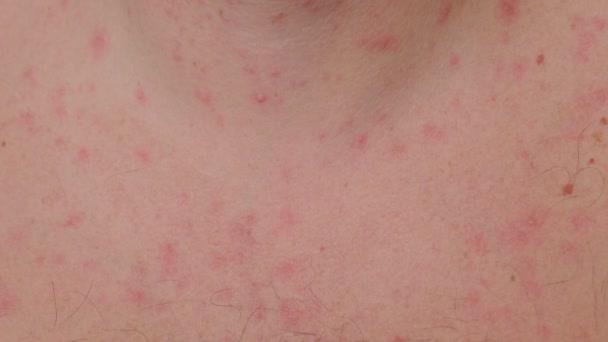 Muž je neštovice, má problematickou kůži a jizvy od akné.