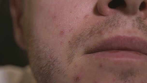 Detailní záběr na velké vyrážky nebo vpichy na kůži dospělého muže.