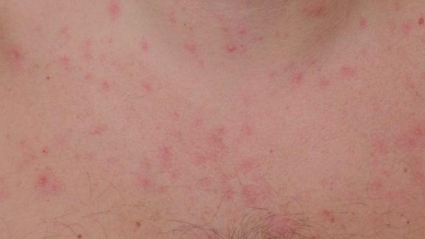 Detailní záběr na neštovice na krku a hrudníku dospělého muže.