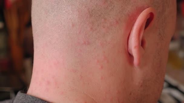 Dospělý člověk má neštovice a na kůži má mnoho červených teček. Detailní záběr.