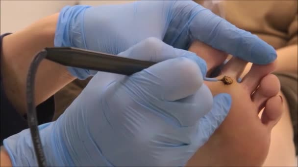 Dermatologist surgeon uses electrocautery to remove the plantar wart (step  3/10)
