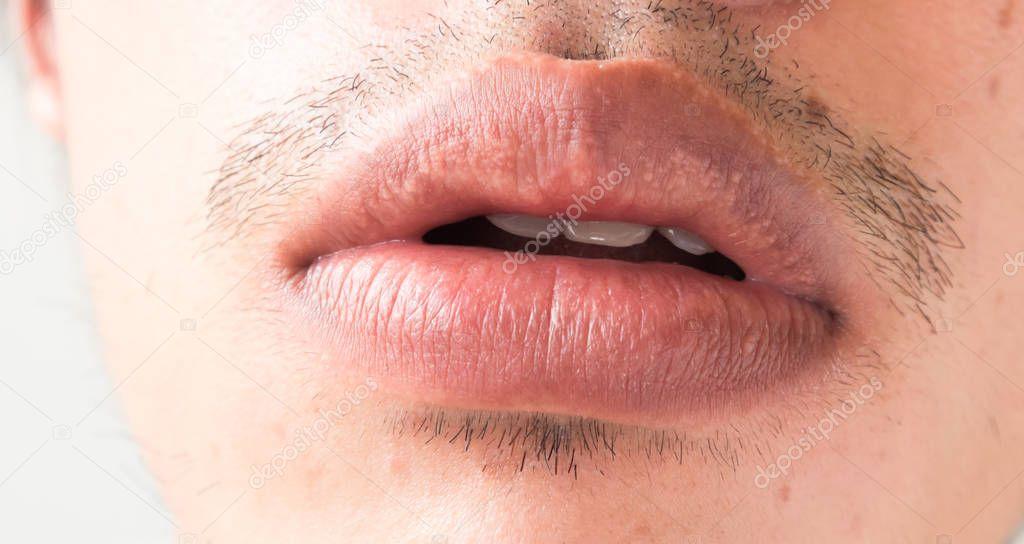 closeup de labios hombre problema salud herpes simple. Black Bedroom Furniture Sets. Home Design Ideas