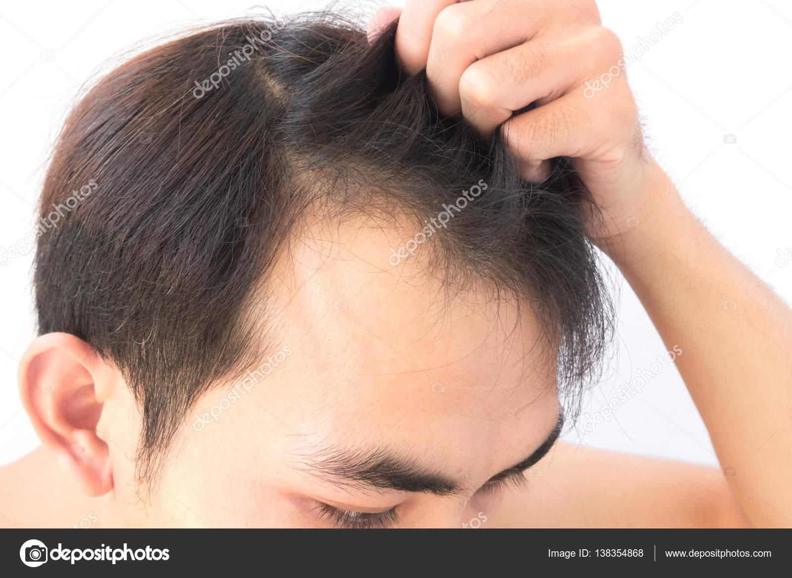 Saç Dökülmesi Sorunu Ve Etkili Çözüm Yolları