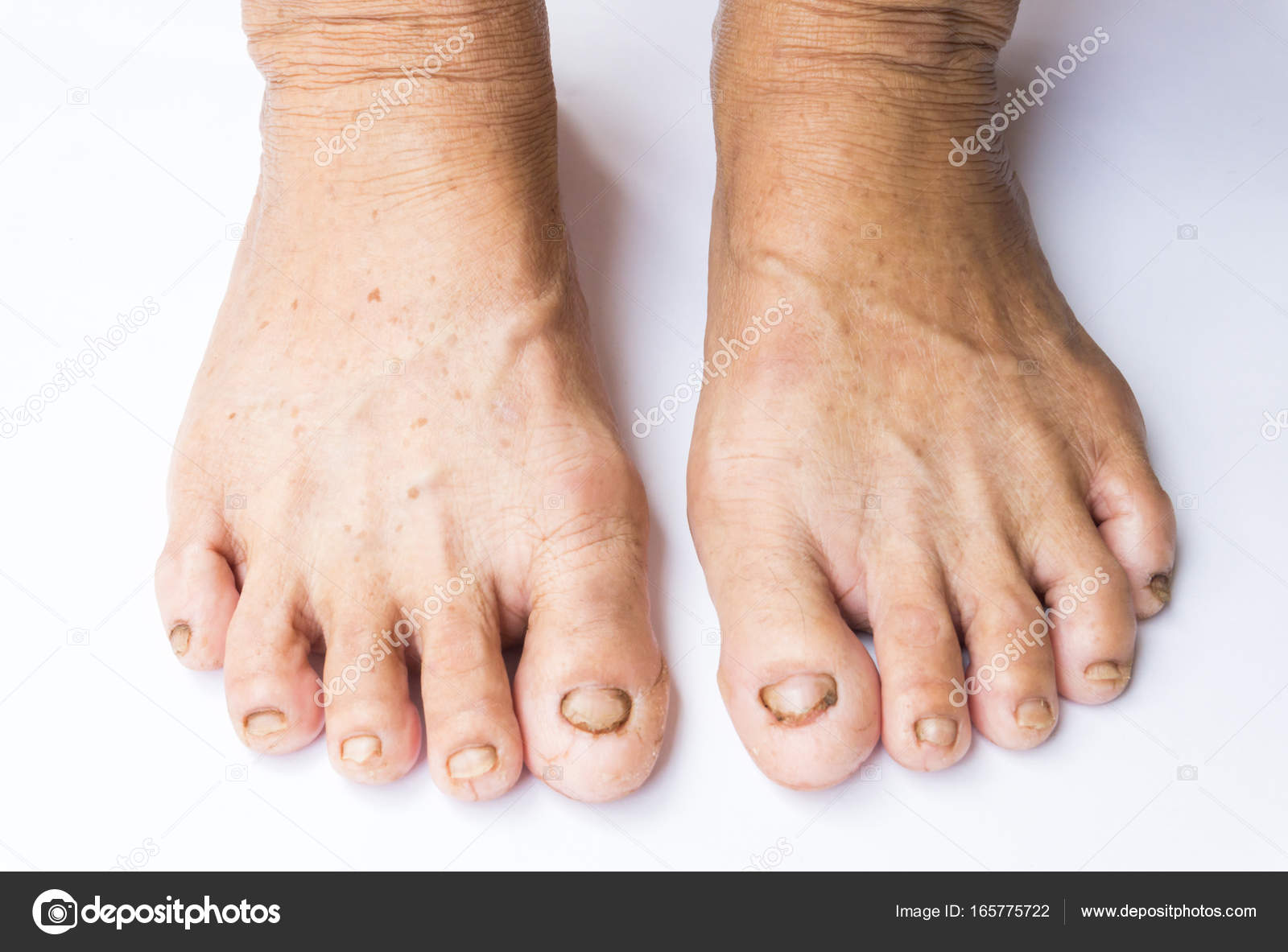 Closeup woman cracked feet and heels on white background, health ...