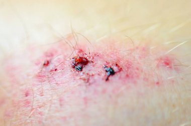 Abrasion. Deep wound on the skin