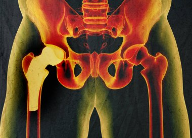Hip replacement model