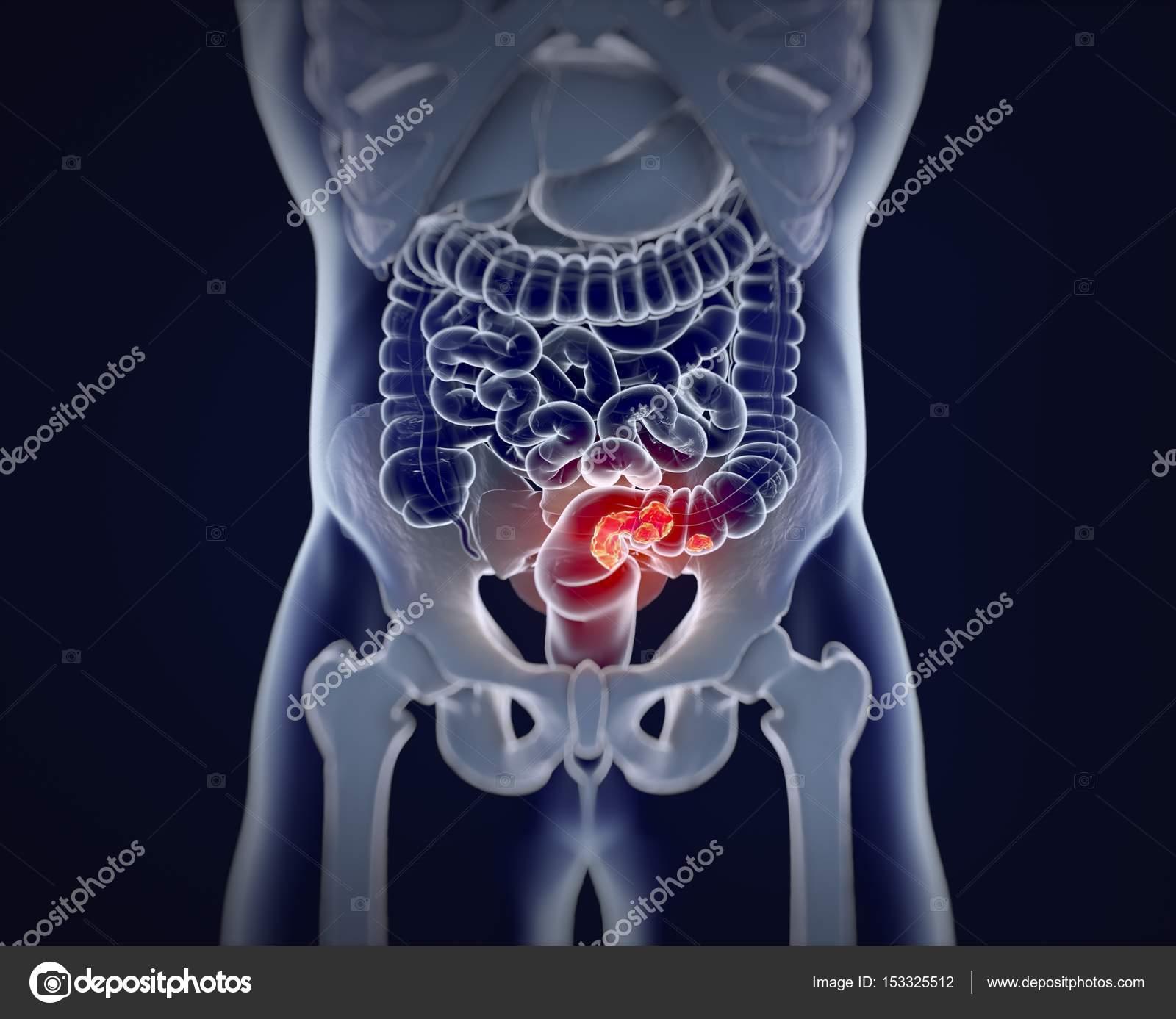 Modelo de anatomía del cáncer colorrectal — Foto de stock ...