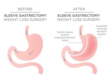 Stomach Staple Bariatric Surgery