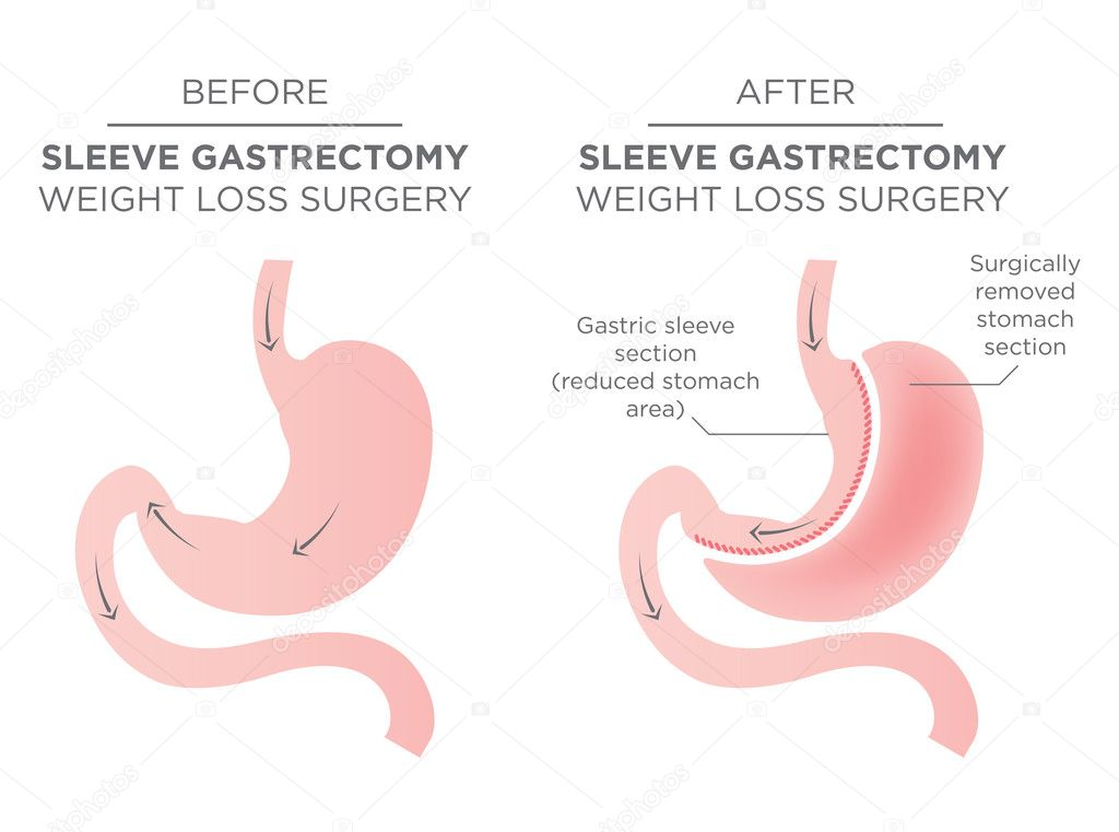 sleeve gastrectomy vs gastric bypass