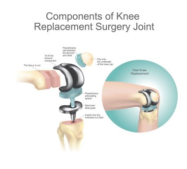 Components of knee replacement surgery join