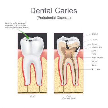 Dental caries periodontal disease.