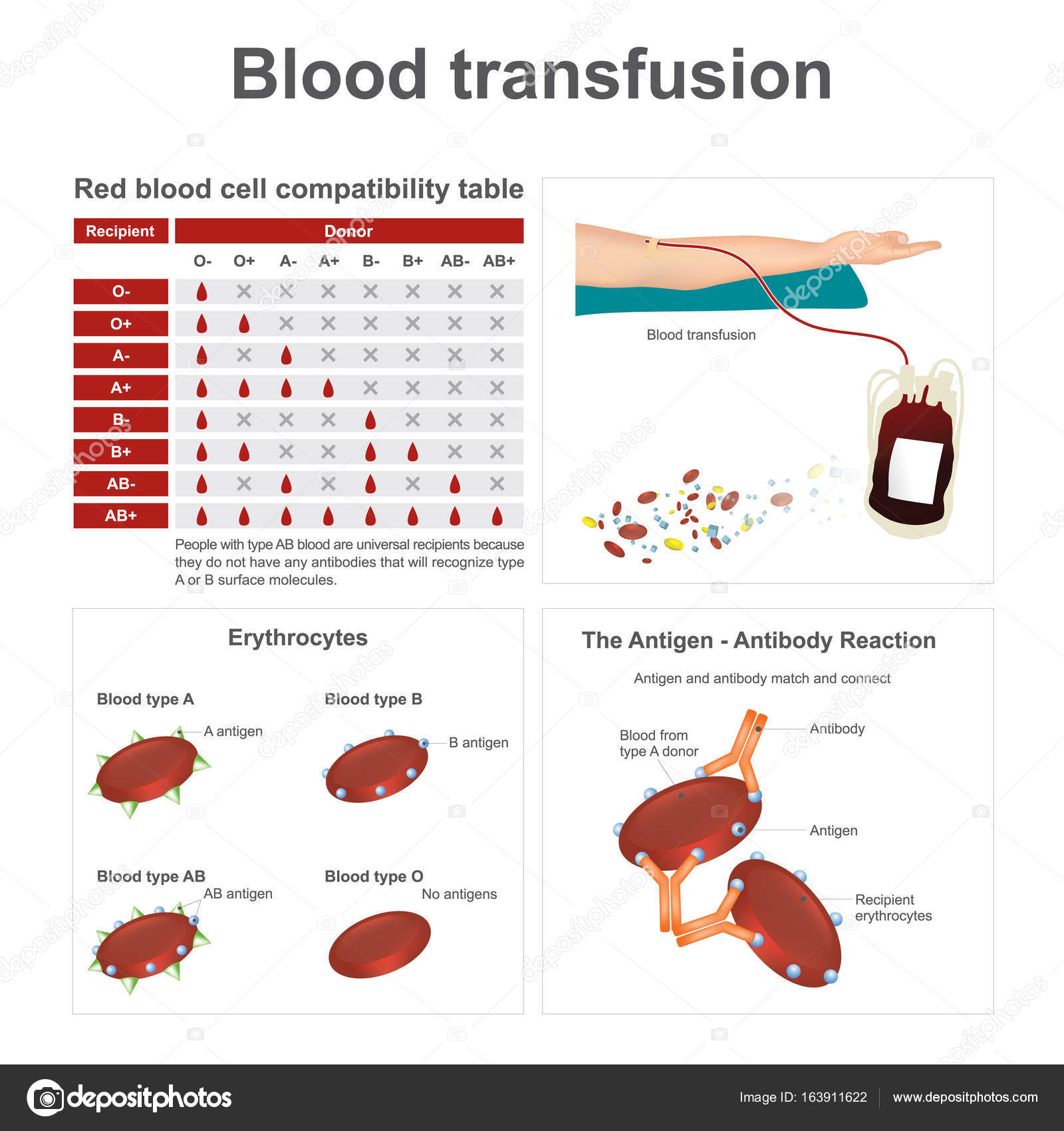 Blood transfusion there are two special blood types when it comes blood transfusion there are two special blood types when it comes to blood transfusions pooptronica