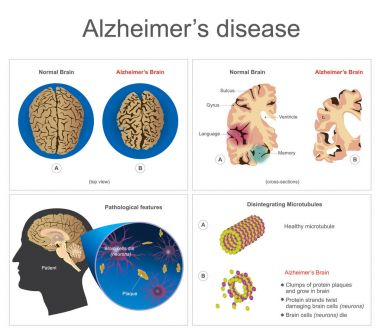 Alzheimers disease. Brain cells die, neuron diseased, certain areas of brain shrink memory loss or changes in memory for people at risk could affect younger people. Info graphic vector.