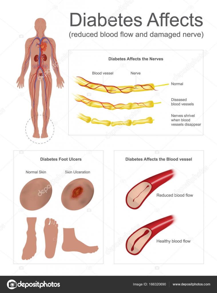Diabetes wirkt sich auf die Nerven und Gefäße — Stockvektor ...
