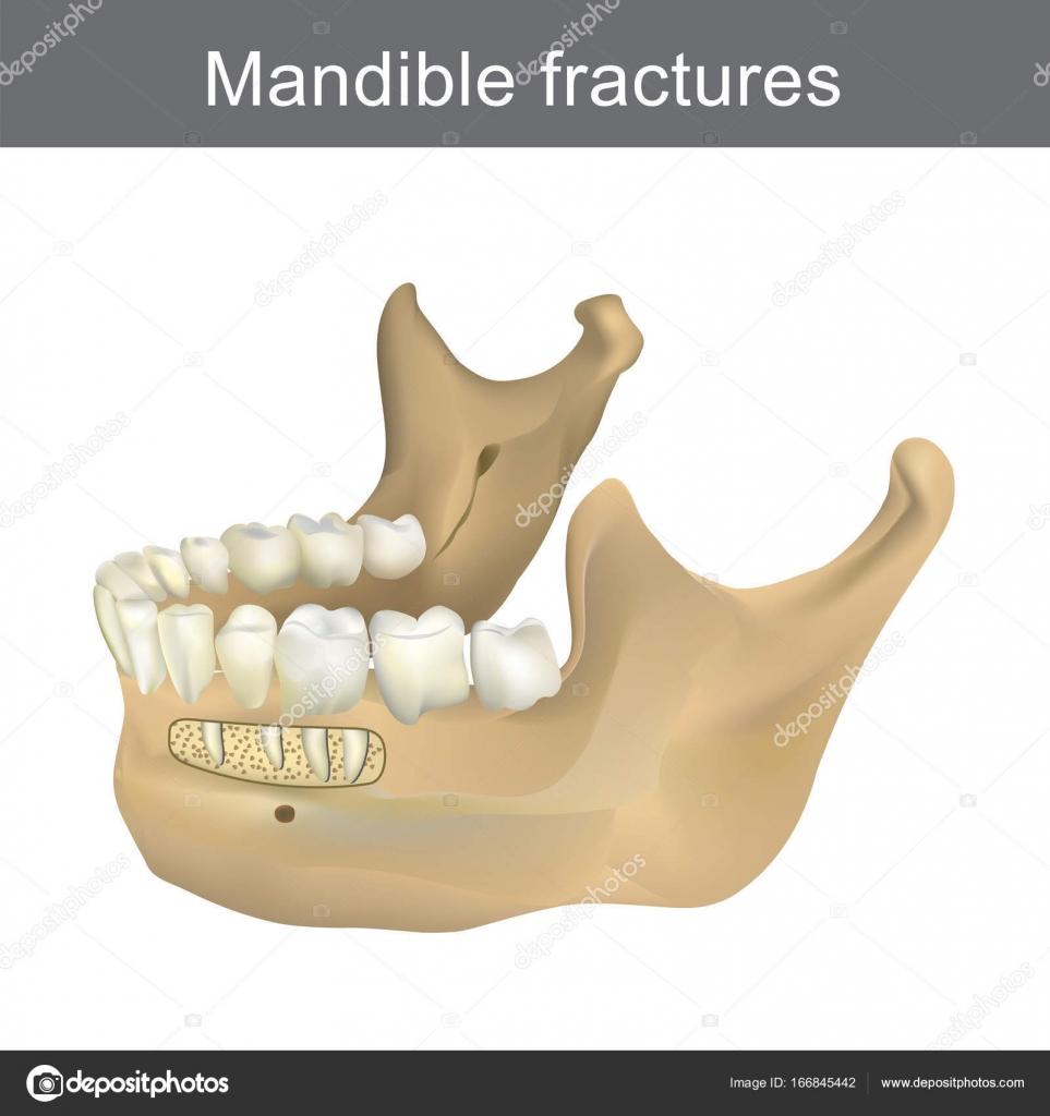 Las fracturas de la mandíbula es el hueso más grande, más fuerte y ...