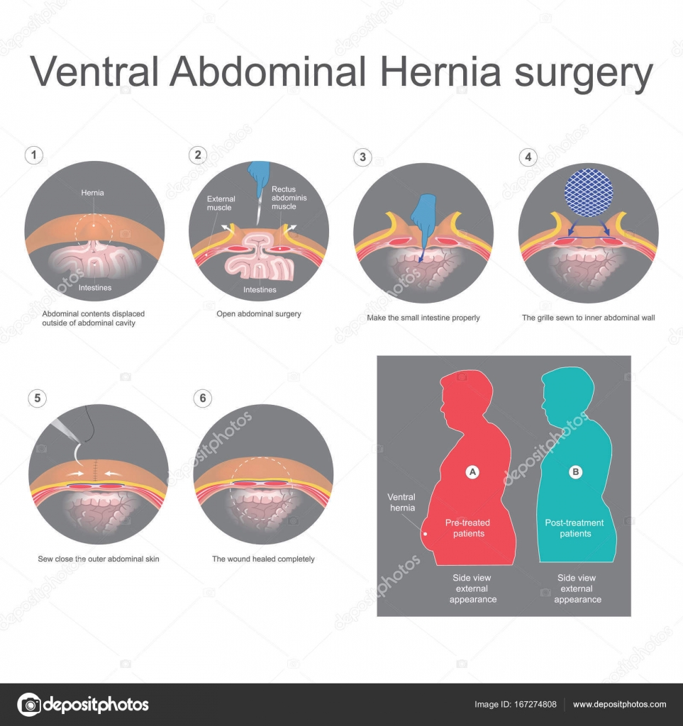 Ventral hernia is a bulge of tissues through an opening of weakn ...