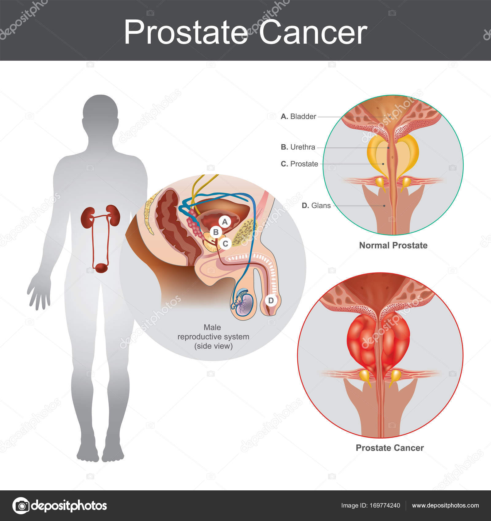 Prostaatkanker. Illustratie anatomie lichaamsdeel — Stockfoto ...