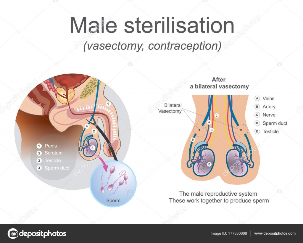 Male sterilisation vasectomy. The male reproductive system these ...