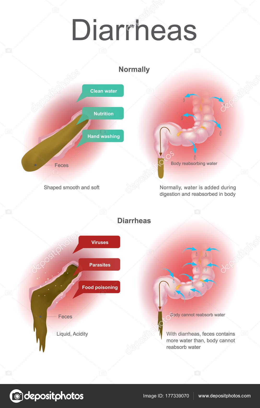 Diarreas. Normalmente el agua es añadido durante la digestión y ...