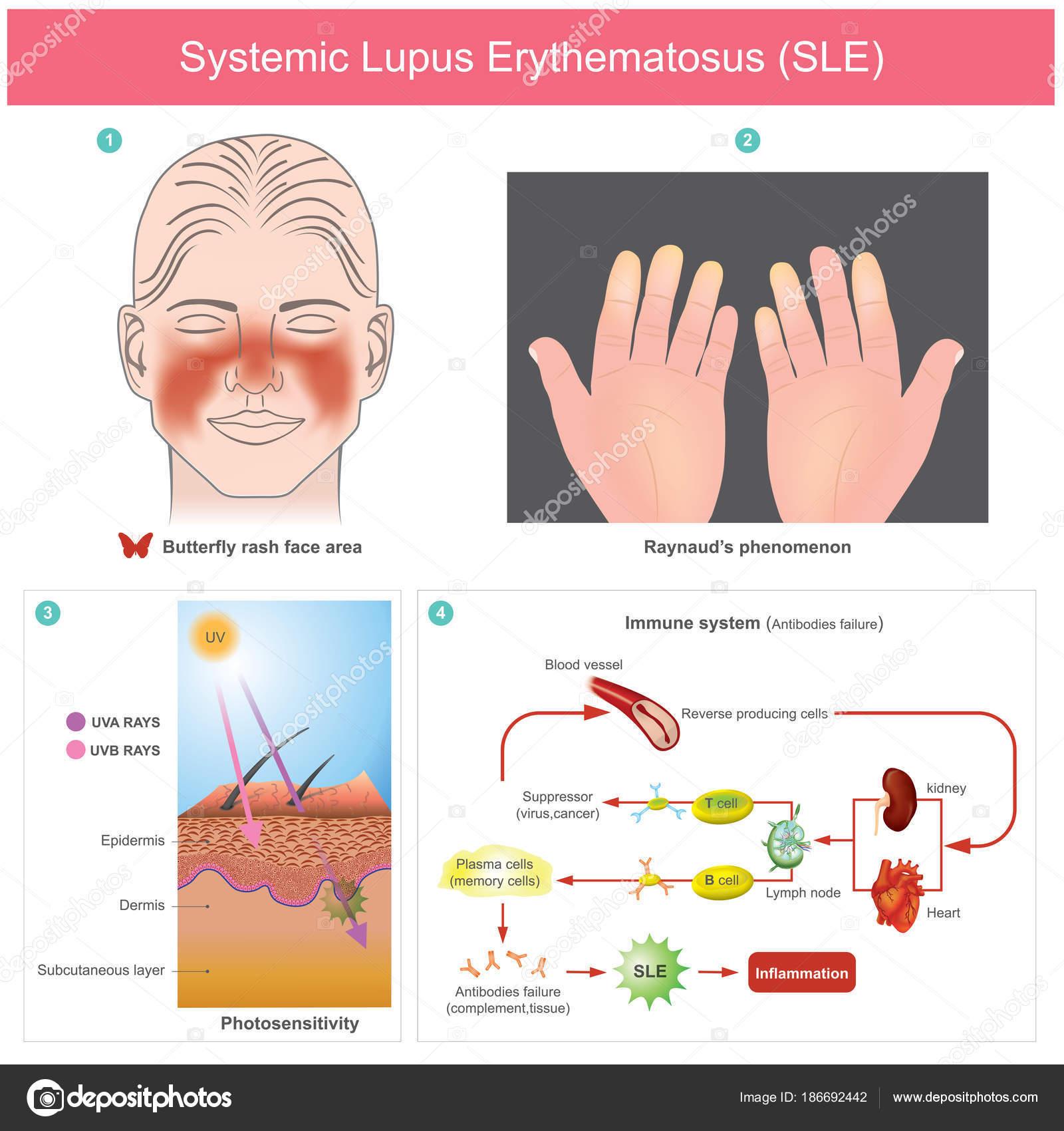 lupus erythematosus bilder