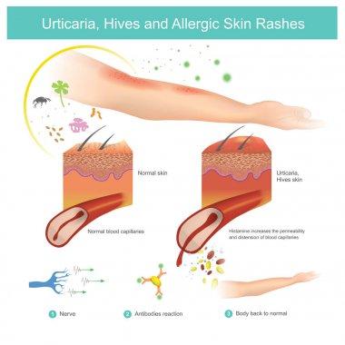 Urticaria, Hives and Allergic Skin Rashes. Illustration.