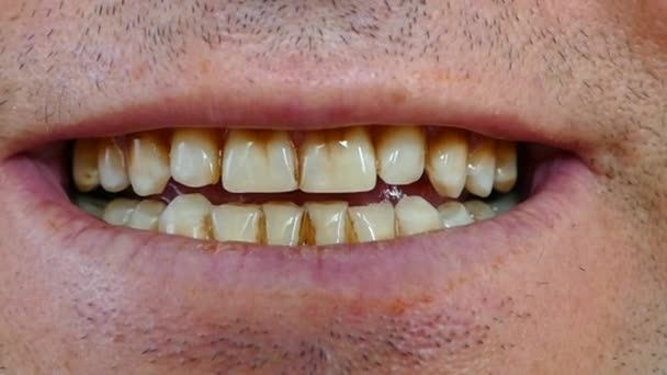 elhanyagolt száj és egy személy sárgás fogai,