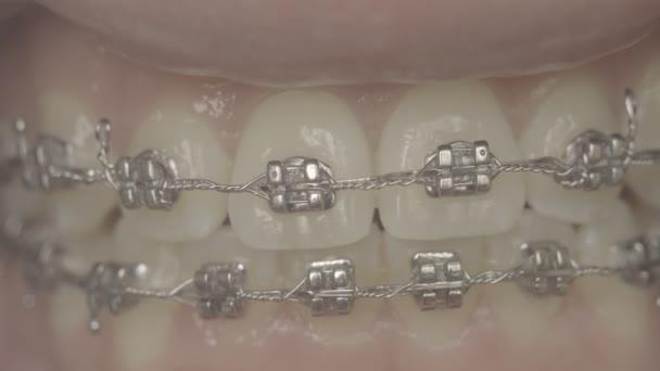 Makro-Aufnahmen der Zähne mit Zahnspangen