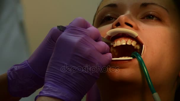 Befestigen die Klammern auf den Zahn