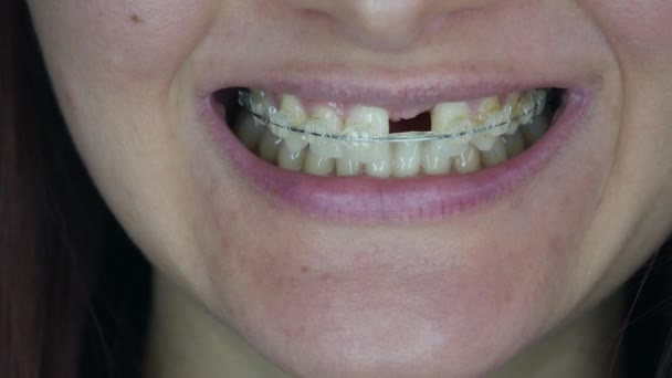 A womans smile. Smile without upper left unit teeth. Tooth model with metal wire dental brace. Single Missing Tooth - Removable partial denture. One false plastic tooth.