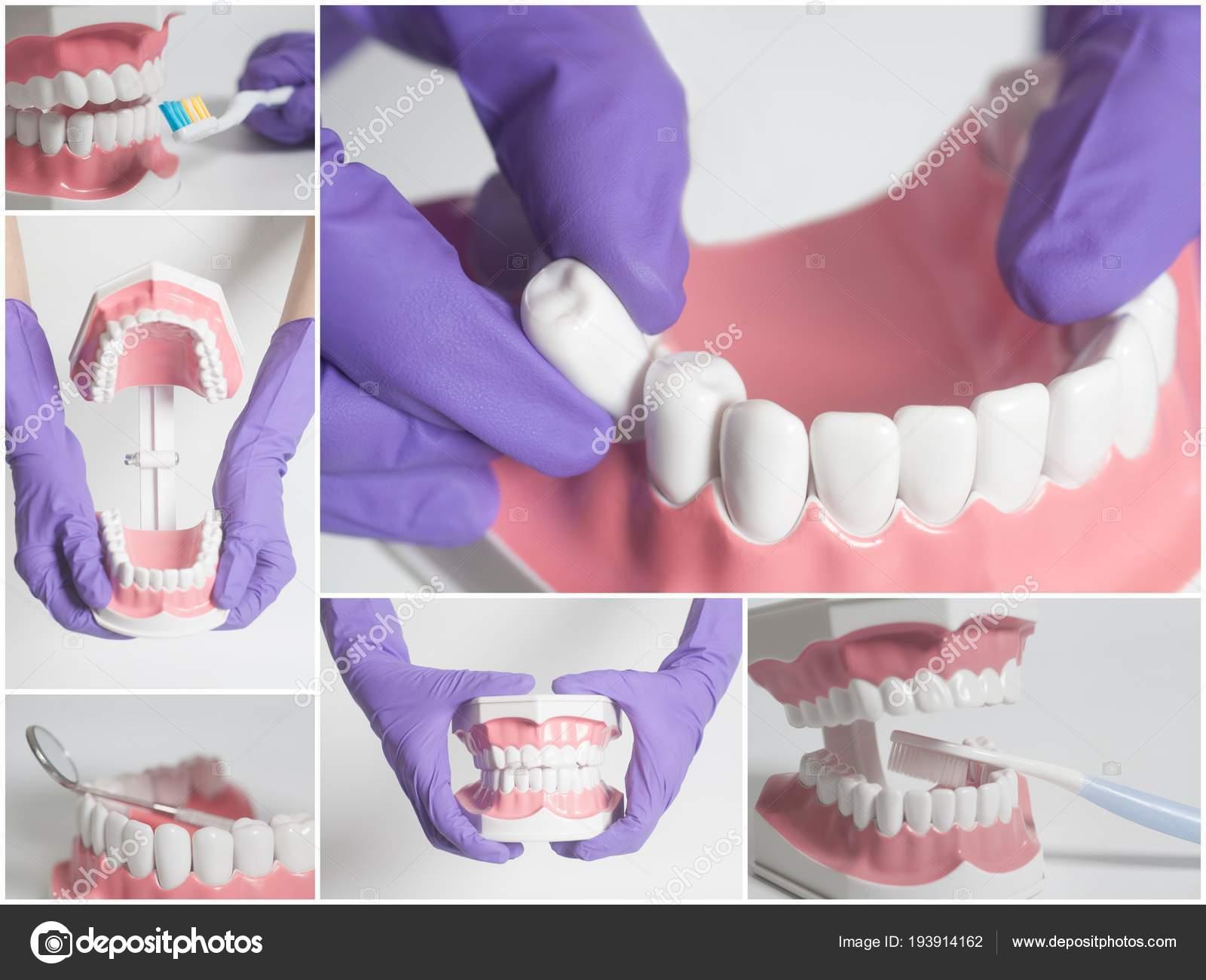 Modelo humano de los dientes. Concepto de atención dental. Collage ...