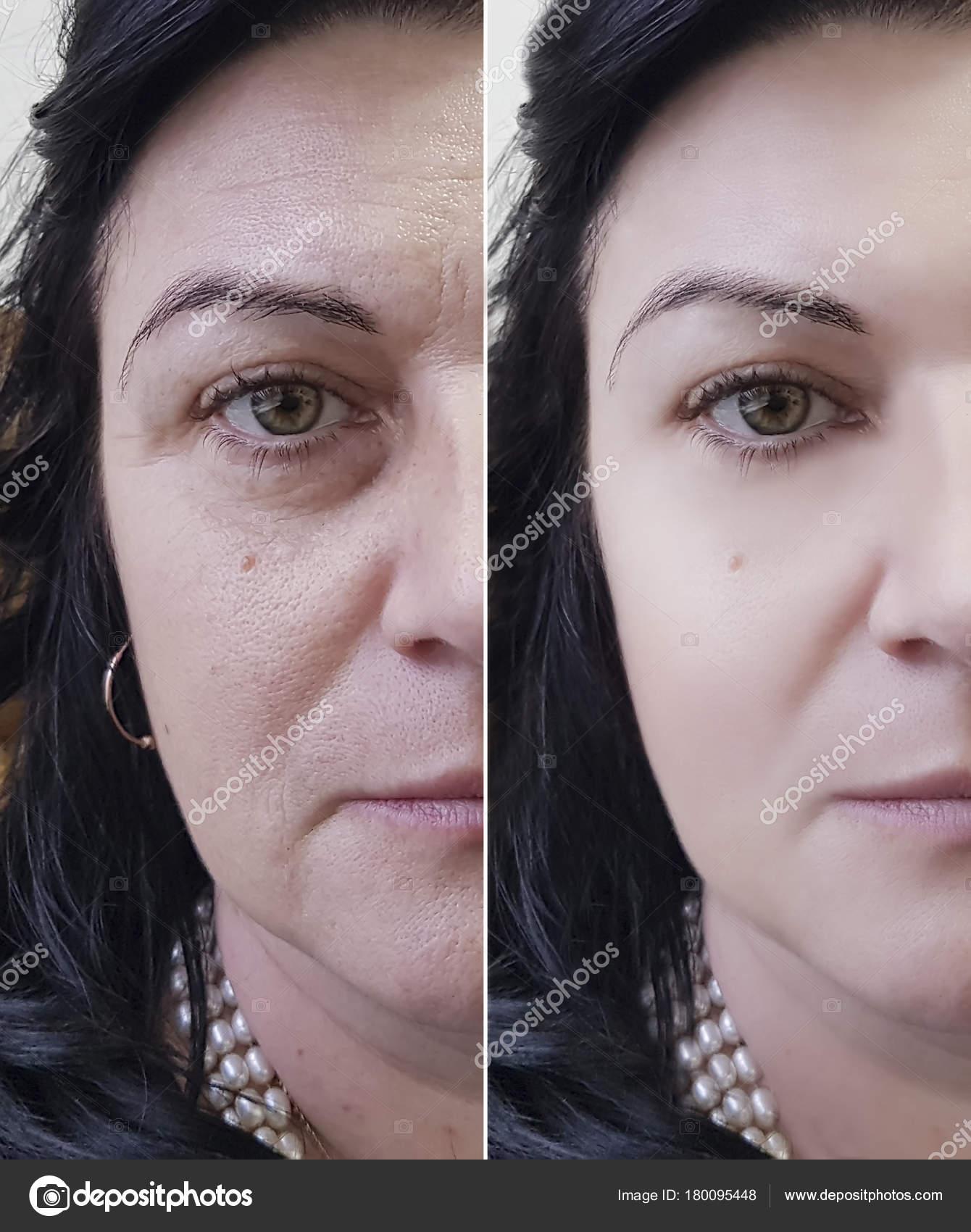 d24a031f21c0 Frau Falten Gesicht Vor Und Nach — Stockfoto © TanyaLovus #180095448