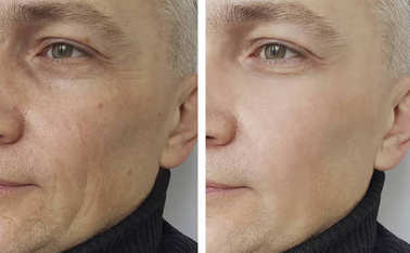 man wrinkles before and after