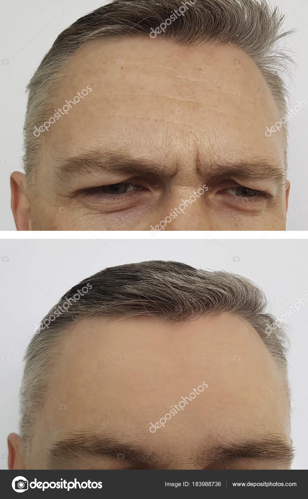 rimpels voorhoofd man