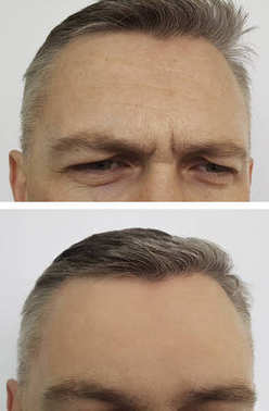 man wrinkles on the forehead before and after