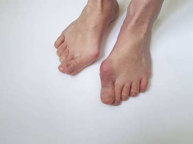 valgus female leg on a white background