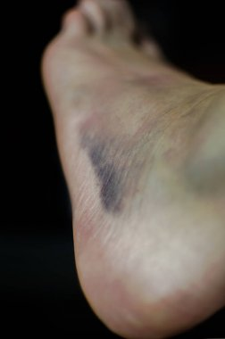 Macro shot of bruise on skin