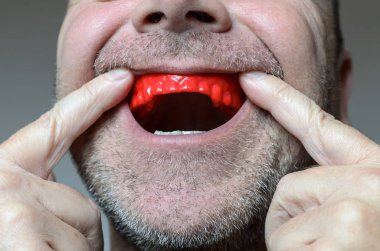 Man placing a bite plate in his mouthred