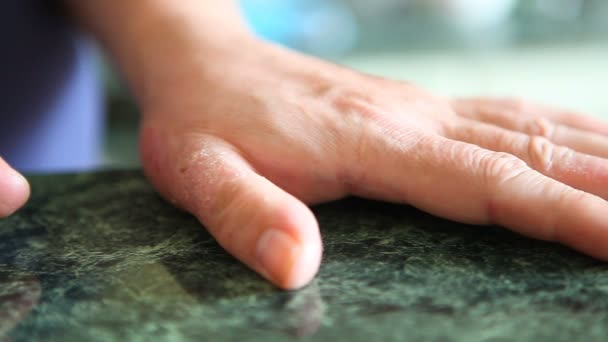 Hands with psoriasis or shingles sickness. Skin problems.