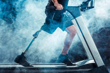 sportsman with leg prosthesis training on treadmill