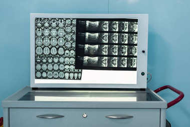 medical screen with x-ray in modern hospital